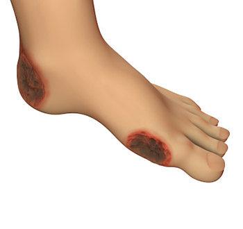 Úlceras Vasculares